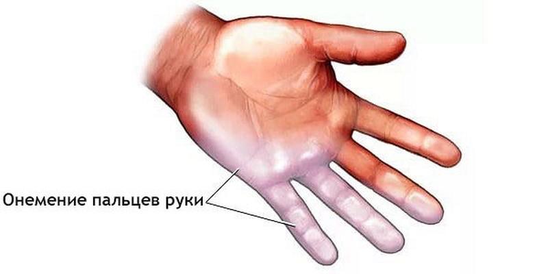 Немеют пальцы рук. Причины и лечение